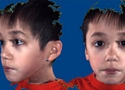 Nhận diện khuôn mặt của trẻ bị tự kỷ