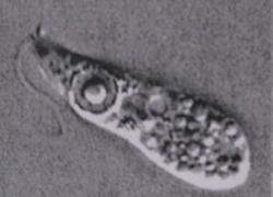 Amip ăn não người bị nghi giết chết một em bé