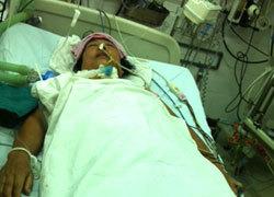 Bệnh nhân chết lâm sàng sau mổ thanh quản