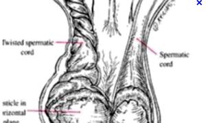 Hỏng 'bi' vì chủ quan với chứng đau tinh hoàn