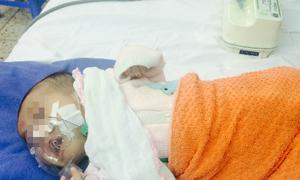 Không tiêm văcxin, nhiều trẻ mắc bệnh ho gà thể nặng