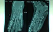 Tháo khớp nửa bàn chân vì nhiễm trùng do tiểu đường