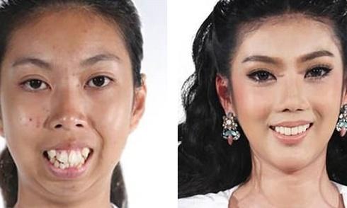 Cô gái Thái 'từ quạ hóa công' sau phẫu thuật thẩm mỹ