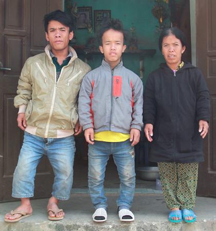 Di truyền từ cha mà ba người trong gia đình chị Bình đều lùn.