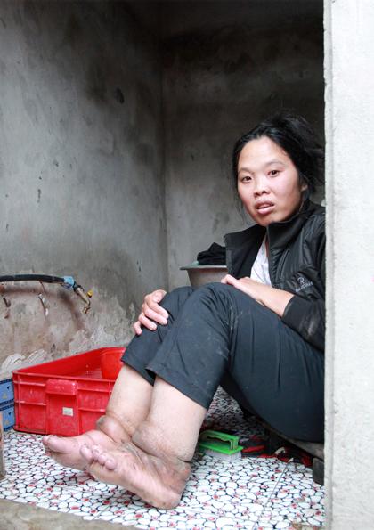 Bệnh phù chân voi (hay còn gọi là bệnh giun chỉ) tập trung nhiều ở các tỉnh miền Bắc nước ta, chủ yếu ở vùng trồng lúa nước với4 tỉnh trọng tâm là Hải Dương, Hà Nam, Thái Bình, Hưng Yên.