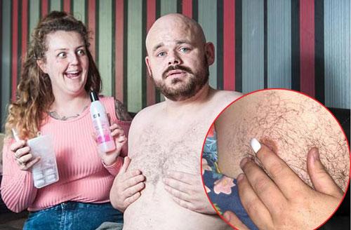 Cô vợ gắn chặt ngón tay của chồng vào ngực chồng khiến anh không thể dứt ra. Ảnh: The Sun.