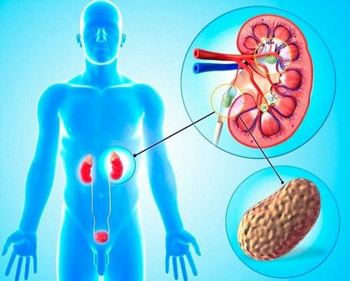 Sỏi thận có thể gây ra nhiều biến chứng nguy hiểm nếu người bệnh không chữa trị đúng cách và kịp thời.