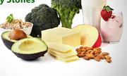 Bệnh nhân sỏi thận nên ăn và kiêng gì?