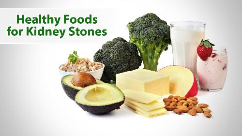 Người bệnh sỏi thận nên ăn uống nhiều nước, ăn những thực phẩm giàu canxi...