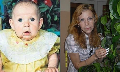 Katja có gương mặt nhăn nheo như bà già từ khi mới sinh ra. Ảnh: Goodtimes.