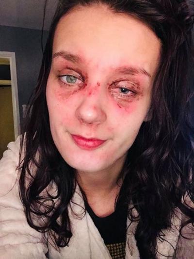 Courtney bị bỏng và mất thị lực tạm thời khi bị trứng nổ vào mặt. Ảnh: The Mirror.