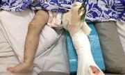 Bé 2 tuổi bị mẹ nuôi đánh gãy chân không còn nhà để về