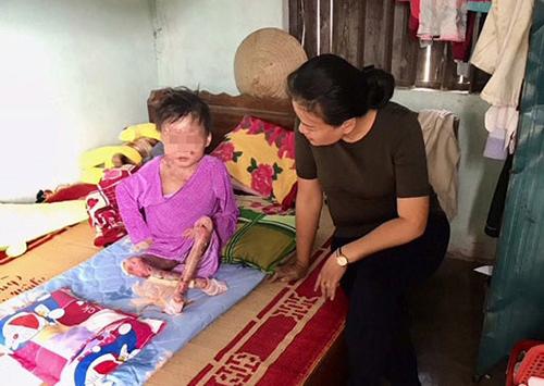 Chị Lan đi giúp đỡ một bệnh nhân EB ở Pleiku vào năm 2018. Ảnh: T.Lan.