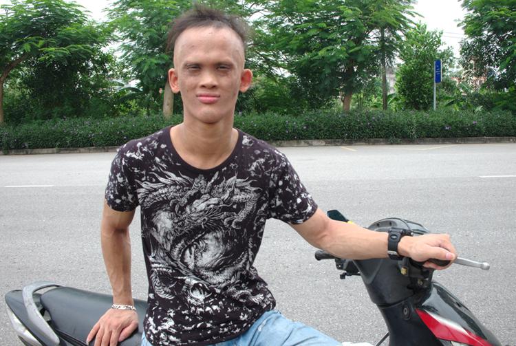 Hà Đức Hùng có khuôn mặt khác biệt cácthành viên gia đình, mắt nhỏ, không răng. Ảnh: Hải Hiền.
