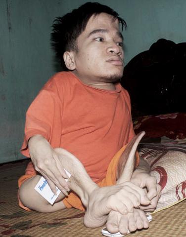 Anh Hà hiện hỗ trợ nuôi một thanh niên khuyết tật ở cùng gia đình mình, và được bạn trẻ này giúp vệ sinh cá nhân.Ảnh: Triệu Quang.