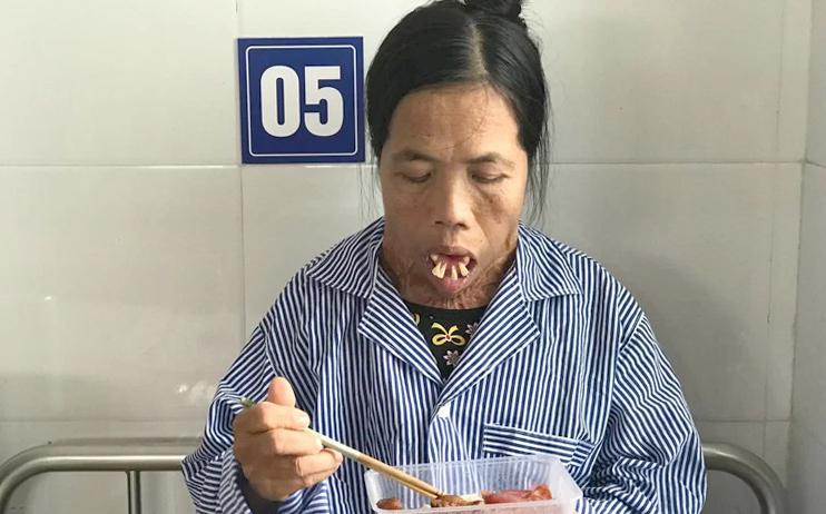 Nằm tại viện Bỏng ở Hà Nội, hàng ngày bà Sáu đượcmột người cháu nấu cơm và mang thức ăn để bớt chi phí. Ảnh: Hải Hiền.