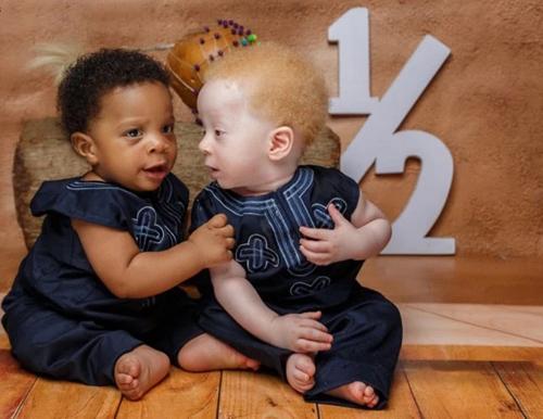 Hai bé David và Daniel có vẻ ngoài khác xa nhau. Ảnh:SWNS.