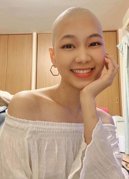 Minh Anh điều trị tại Nhật Bản kể từ khi biết bị bệnh. Sức khỏe sụt giảm nhưng cô giữ được tinh thần lạc quan. Ảnh: Nhân vật cung cấp.