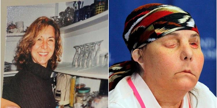 Bà Tarleton trước khi bị chồng hãm hại và khuôn mặt sau phẫu thuật lần một. Ảnh: REUTERS / Jessica Rinaldi.
