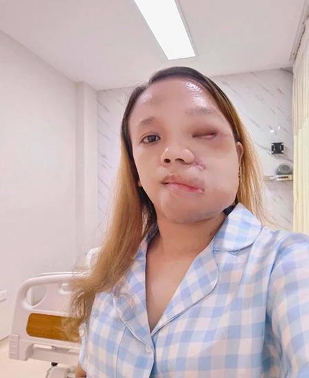 Gương mặt Hương sau gần 2 tuần cắt bỏ khối u. Mắt, mũi và miệng đã tách biệt với nhau, không còn bị kéo xệ bởi khối u khổng lồ. Cô phải trải qua 2 cuộc phẫu thuật chỉnh hình nữa để hoàn thiện hơn khuôn mặt.