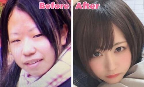 Cô gái trước và sau khi phẫu thuật. Ảnh: Mikishi.