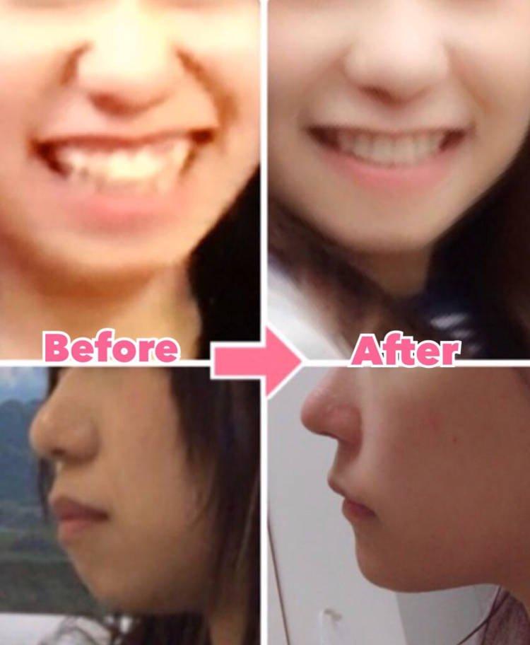 Một số sự thay đổi trên khuôn mặt của Mikishi trước và sau khi phẫu thuật thẩm mỹ. Ảnh: Mikishi.
