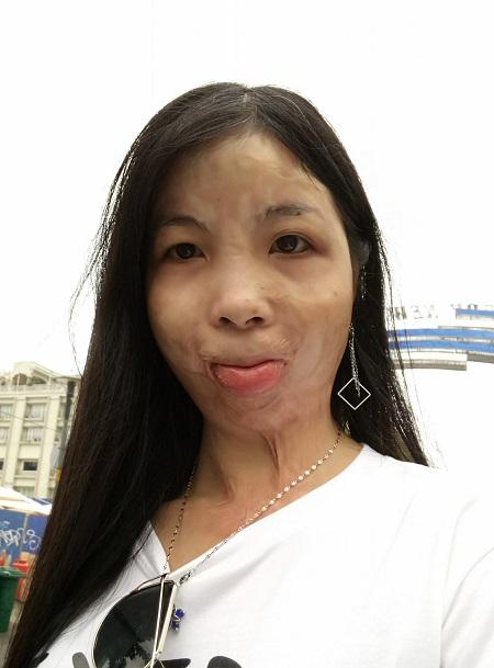 Nguyễn Hương sau tai nạn bị sẹo co kéo khuôn mặt dù trải qua hai ca phẫu thuật. Ảnh: Nhân vật cung cấp.