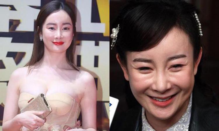 Nữ diễn viên Trương Mông có khuôn mặt cứng đơ sau nhiều lần phẫu thuật thẩm mỹ. Ảnh: the paper.