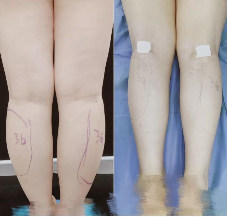 Cắt dây thần kinh chân để thu gọn bắp chân cũng là trào lưu thẩm mỹ mới tại Trung Quốc. Ảnh: The paper.