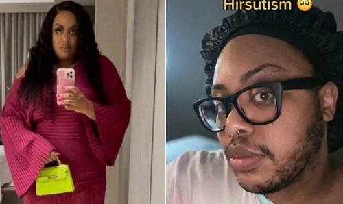 Cô gái thay đổi quan niệm về chính mình, không còn cạo râu khi ra đường, công khai đăng hình ảnh nam tính của mình lên mạng xã hội. Ảnh: Metro.