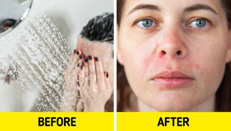 Da nổi mụn và ửng đỏ nếu như thường xuyên rửa mặt dưới vòi hoa sen nước nóng. Ảnh: brightside.me