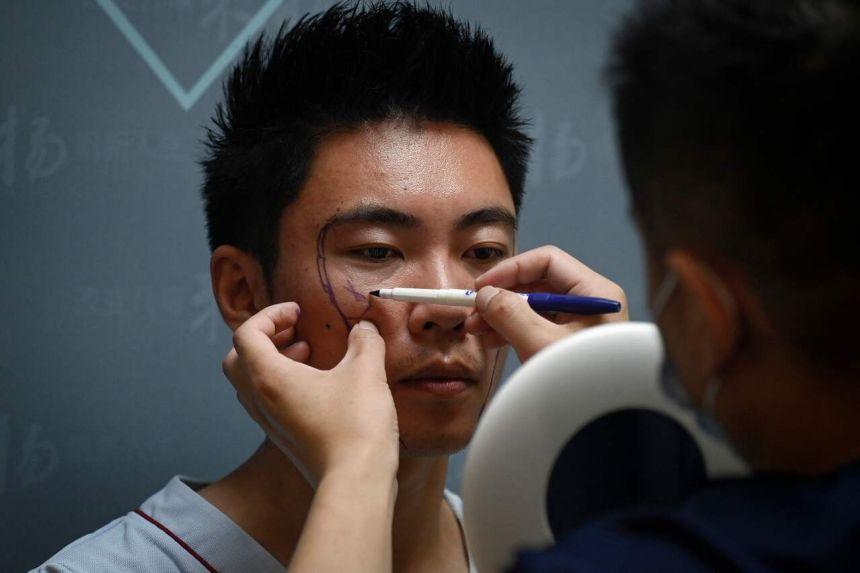 Bác sĩ vẽ lên khuôn mặt Xia Shurong trước khi làm phẫu thuật, tại một phòng khám ở Bắc Kinh, ngày 15/7/2021. Ảnh: AFP.